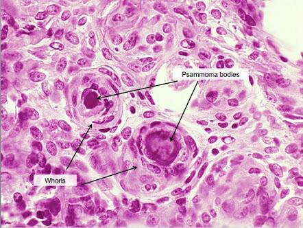 Bilderesultat for psammoma bodies