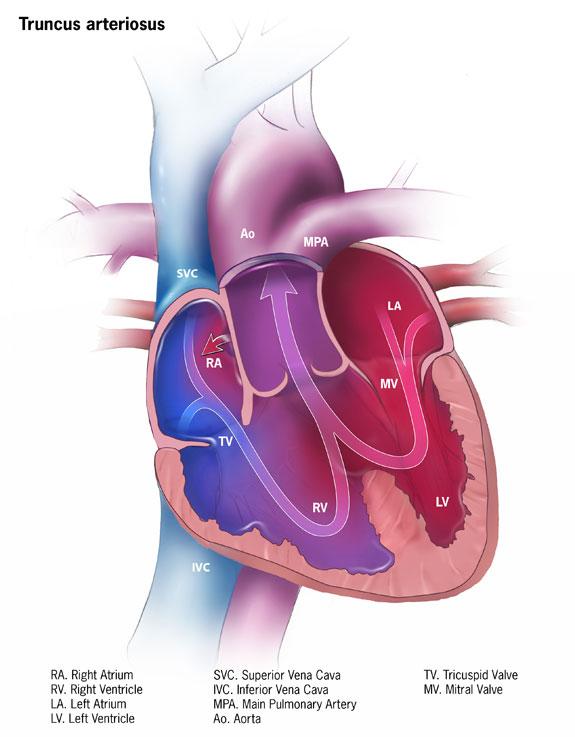 Truncus arteriosus.jpg