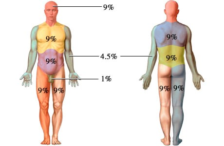Determining Total Body Surface Area - Minnesota Dept. of Health