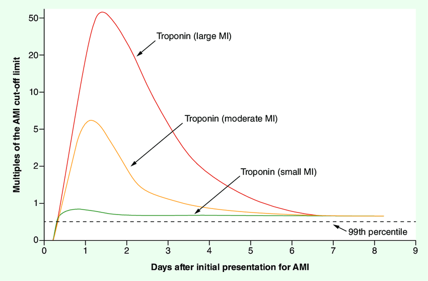 Time course of cardiac troponin elevation as it relates to the size of the myocardial infarction. The time-concentration/activity curves for troponin after large, moderate and small MIs are shown. AMI: Acute myocardial infarction; MI: Myocardial infarction. Adapted with permission from [116].